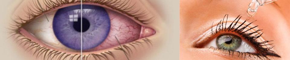 κόκκινα μάτια αλλεργίες